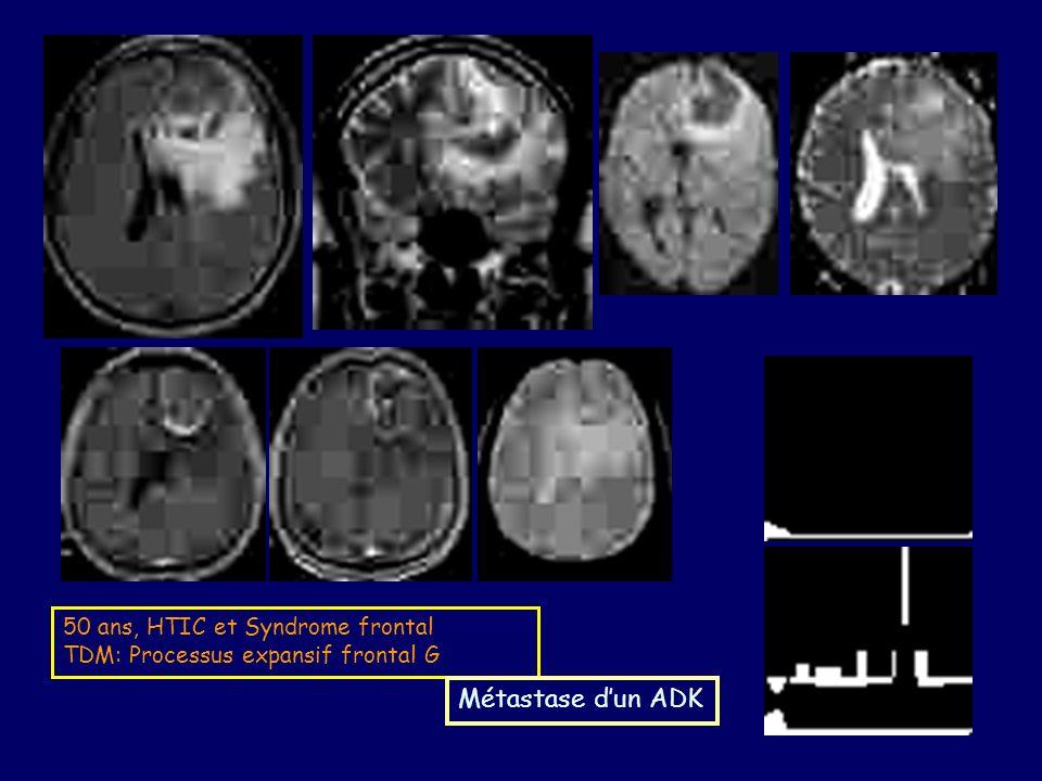 Métastase d'un ADK 50 ans, HTIC et Syndrome frontal