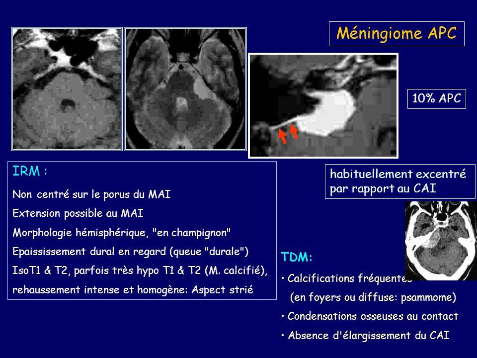 Méningiome APC IRM : 10% APC habituellement excentré