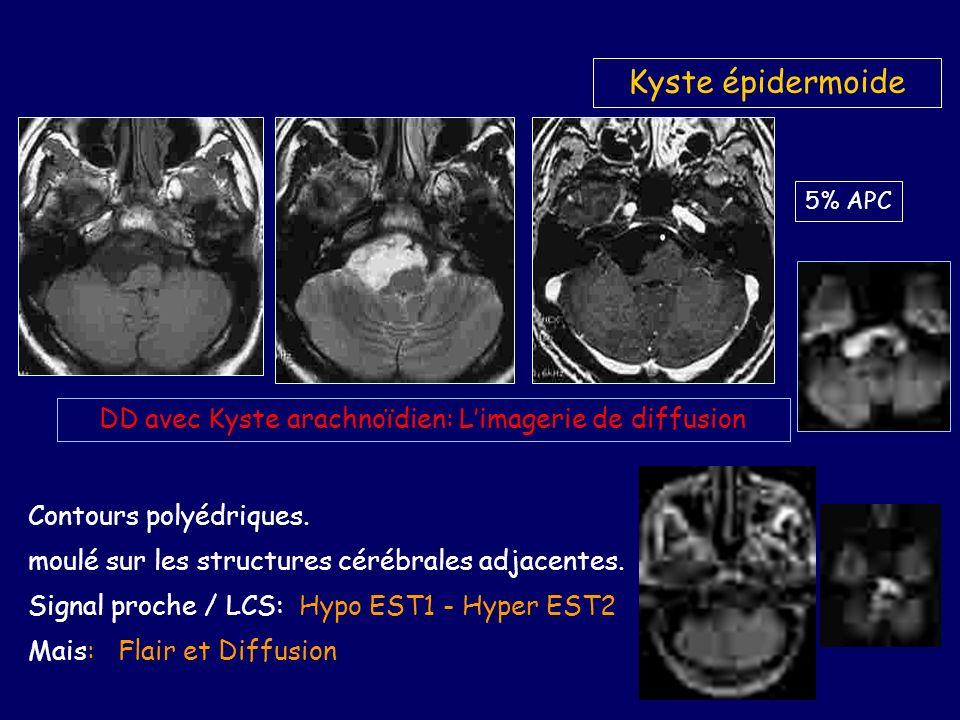 DD avec Kyste arachnoïdien: L'imagerie de diffusion