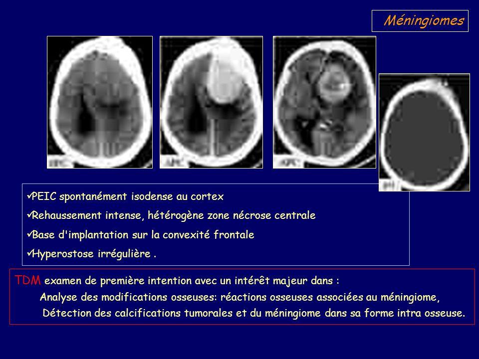 Méningiomes PEIC spontanément isodense au cortex. Rehaussement intense, hétérogène zone nécrose centrale.