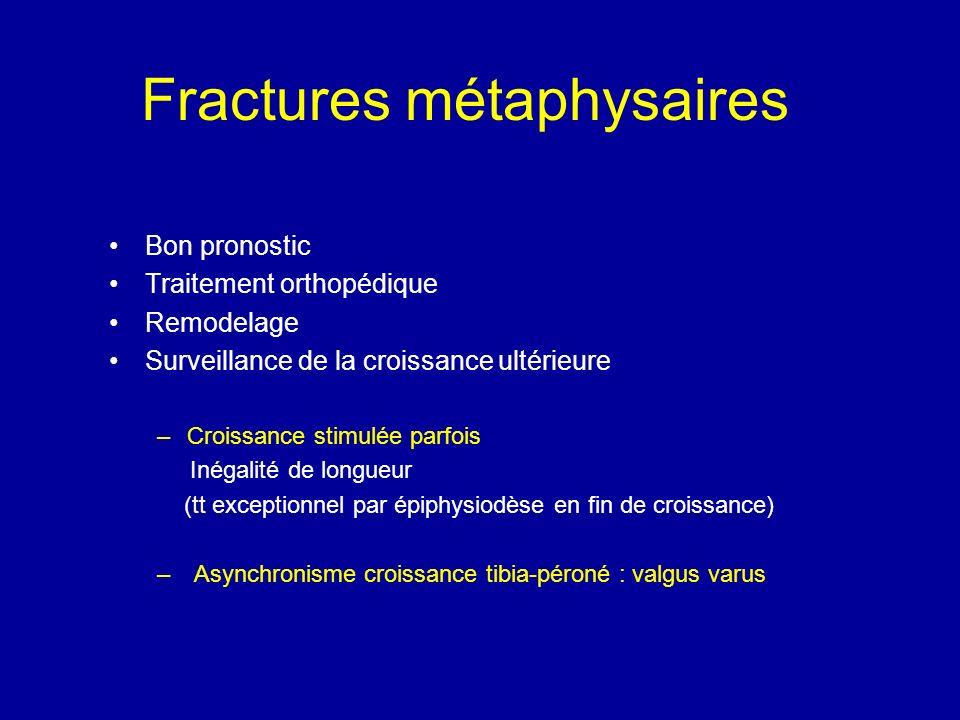 Fractures métaphysaires