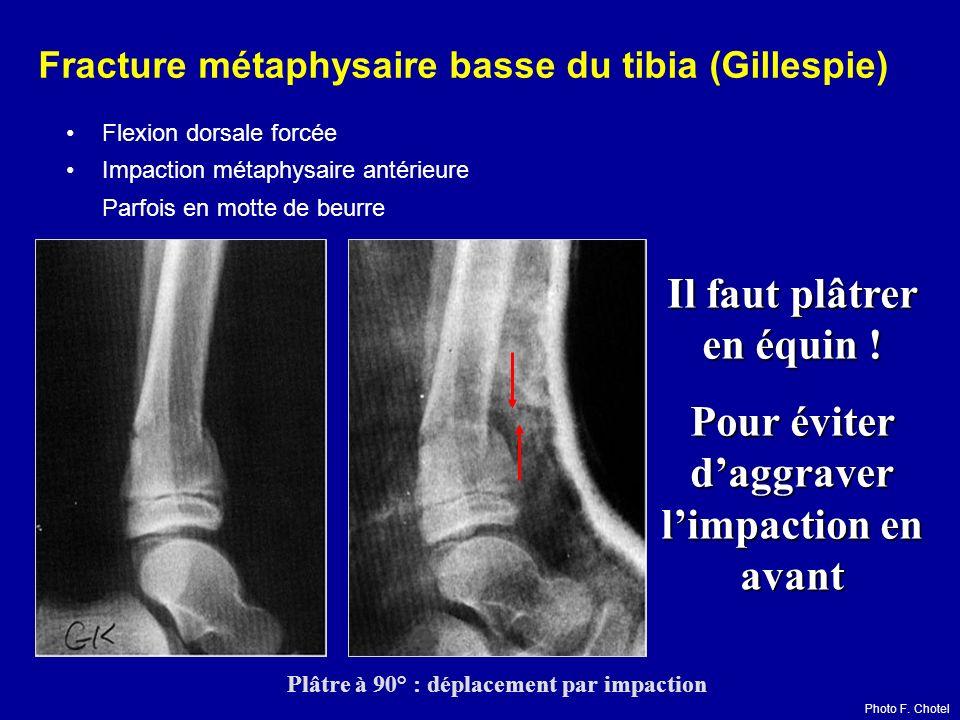 Fracture métaphysaire basse du tibia (Gillespie)