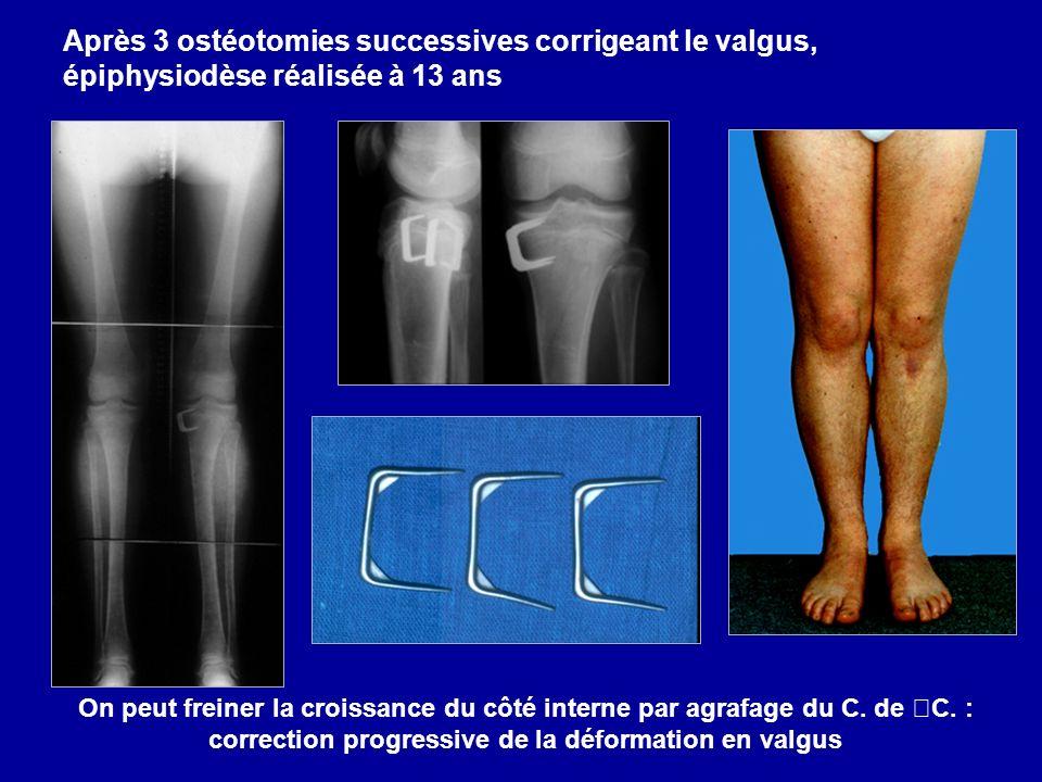 Après 3 ostéotomies successives corrigeant le valgus, épiphysiodèse réalisée à 13 ans