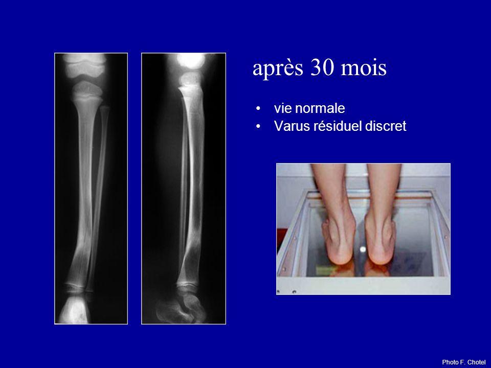 après 30 mois vie normale Varus résiduel discret Photo F. Chotel