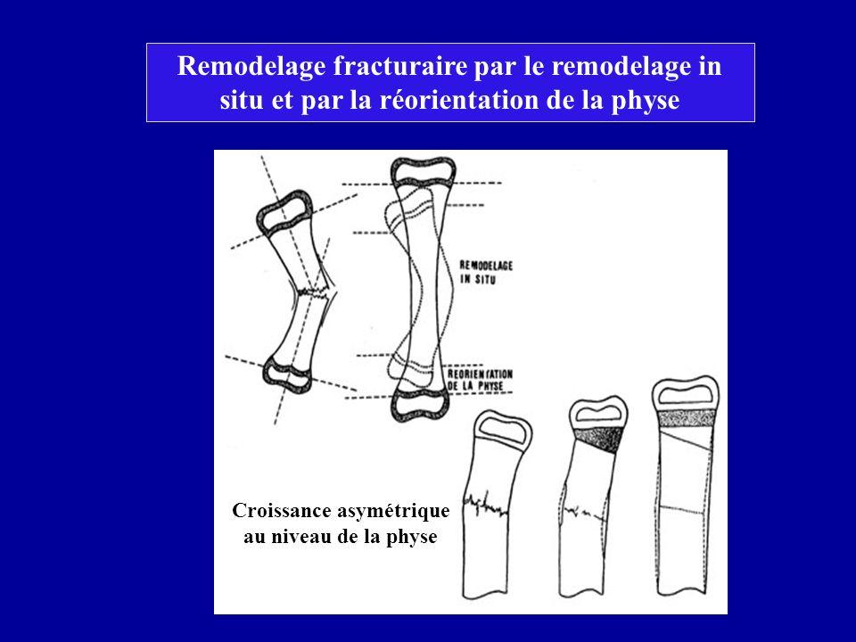 Croissance asymétrique