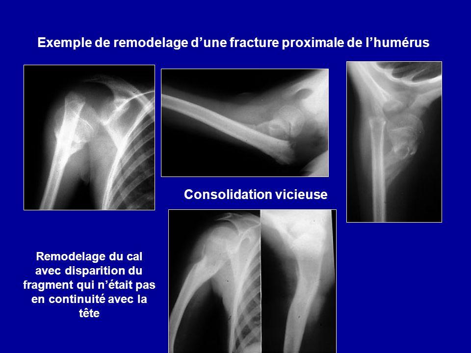 Exemple de remodelage d'une fracture proximale de l'humérus