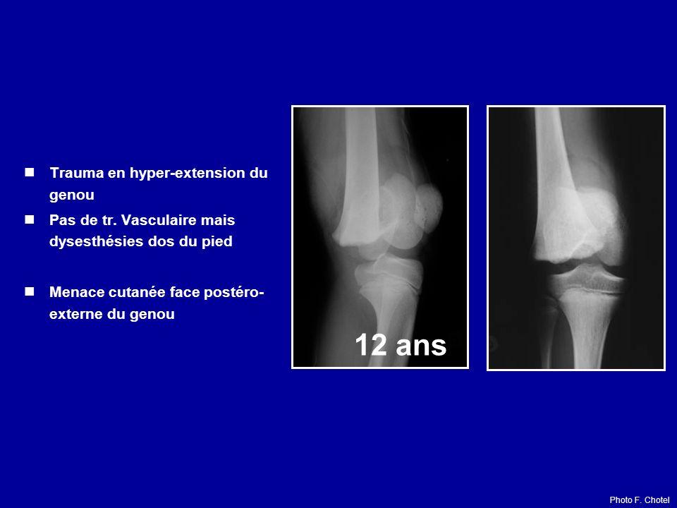 12 ans Trauma en hyper-extension du genou