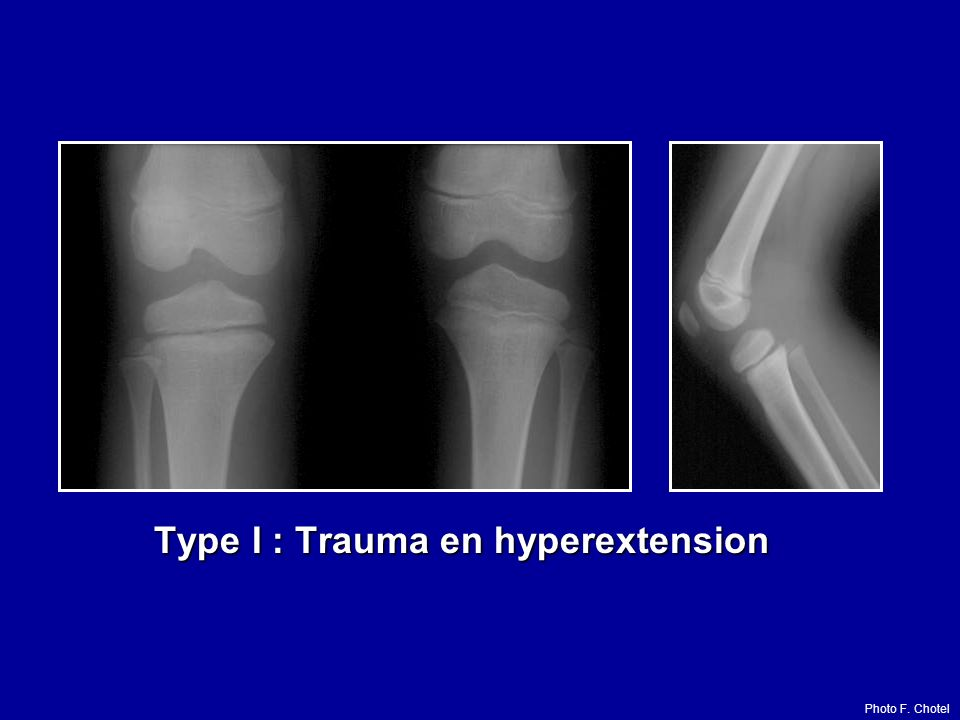 Type I : Trauma en hyperextension