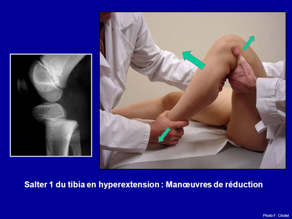 Salter 1 du tibia en hyperextension : Manœuvres de réduction