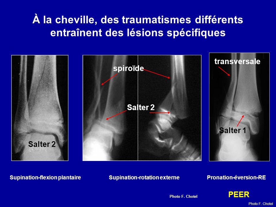 À la cheville, des traumatismes différents entraînent des lésions spécifiques