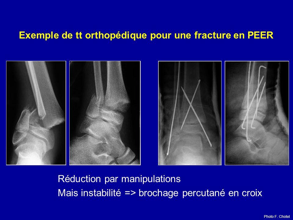 Exemple de tt orthopédique pour une fracture en PEER