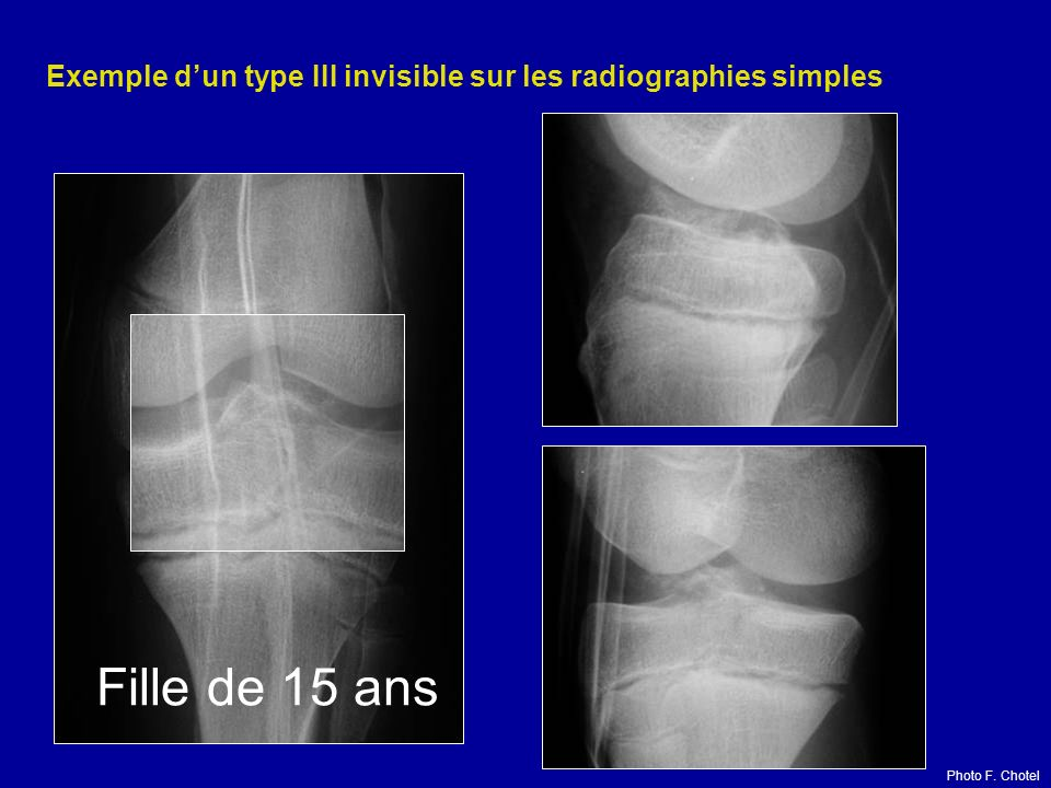 Exemple d'un type III invisible sur les radiographies simples