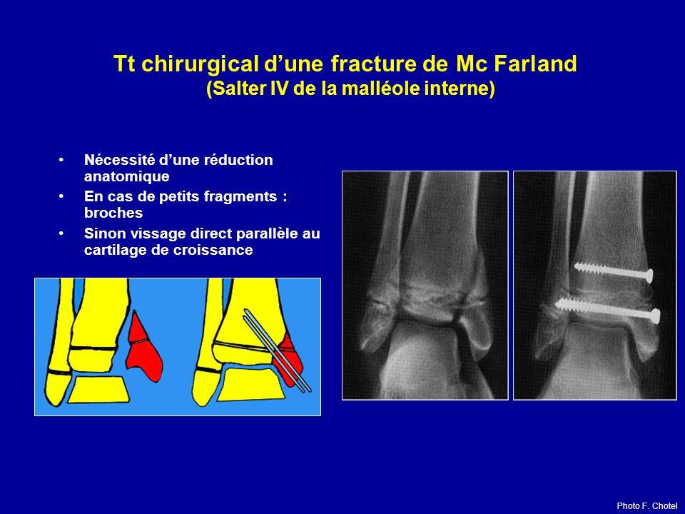 Tt chirurgical d'une fracture de Mc Farland (Salter IV de la malléole interne)