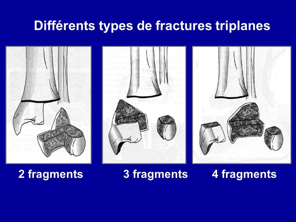 Différents types de fractures triplanes