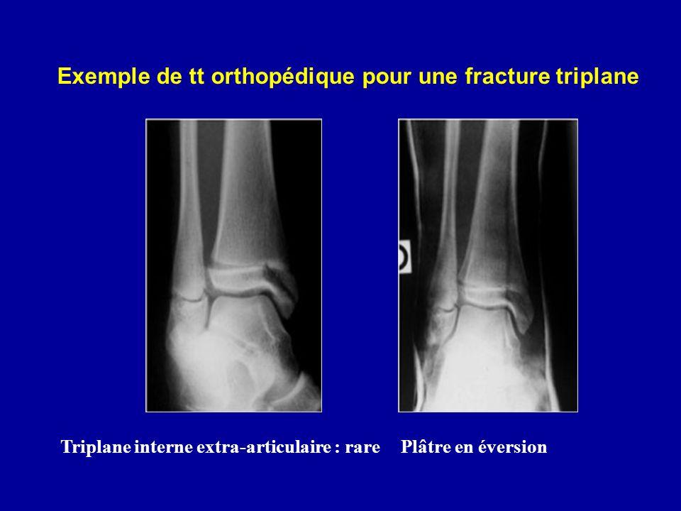 Exemple de tt orthopédique pour une fracture triplane