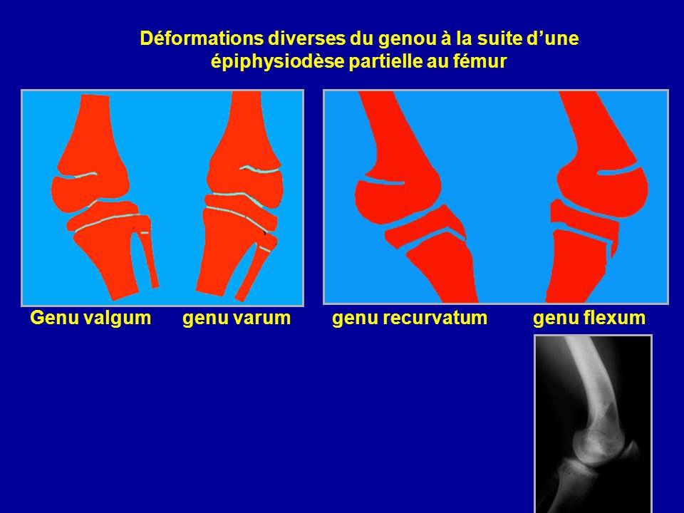 Déformations diverses du genou à la suite d'une épiphysiodèse partielle au fémur