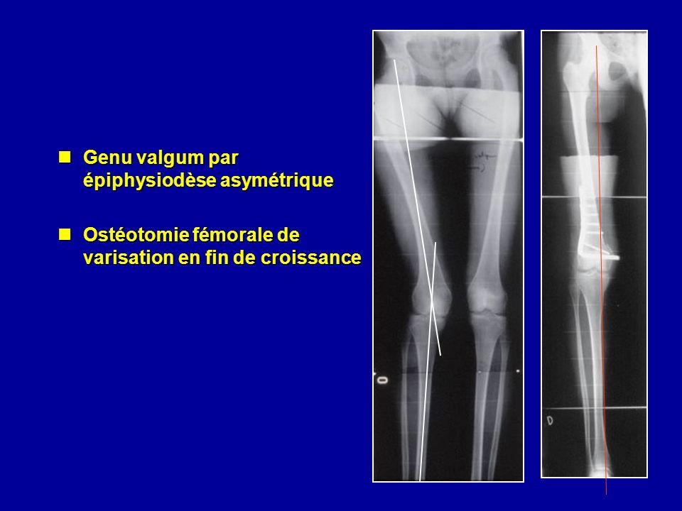 Genu valgum par épiphysiodèse asymétrique