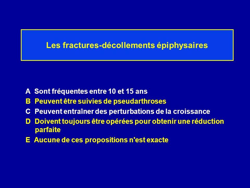 Les fractures-décollements épiphysaires