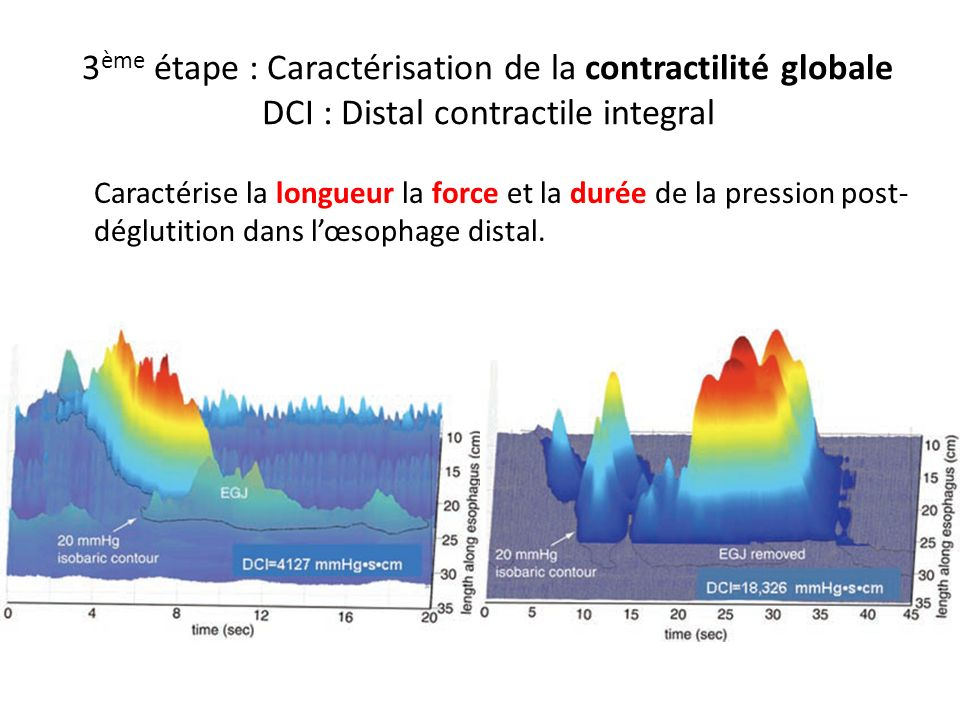 3ème étape : Caractérisation de la contractilité globale DCI : Distal contractile integral