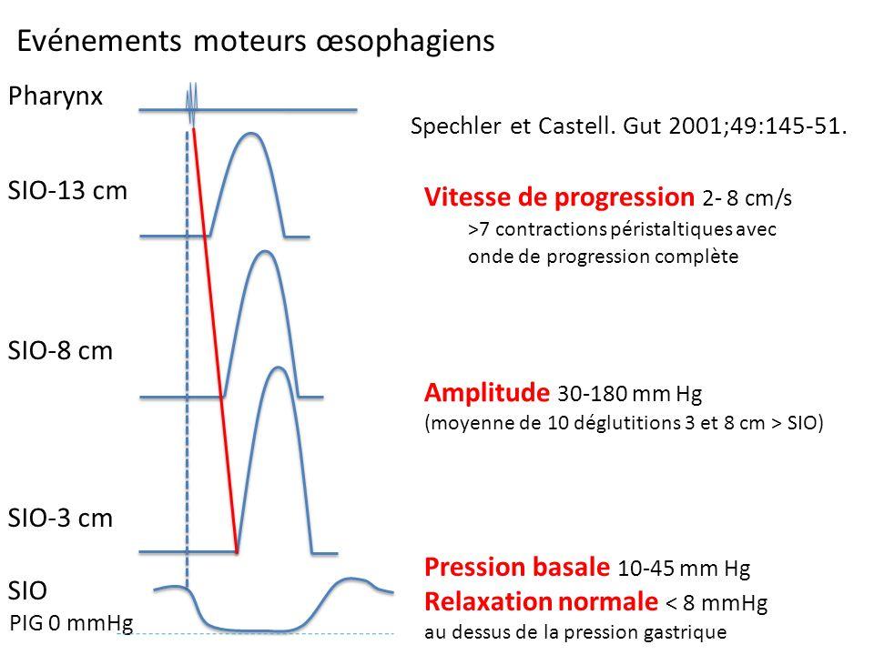 Evénements moteurs œsophagiens