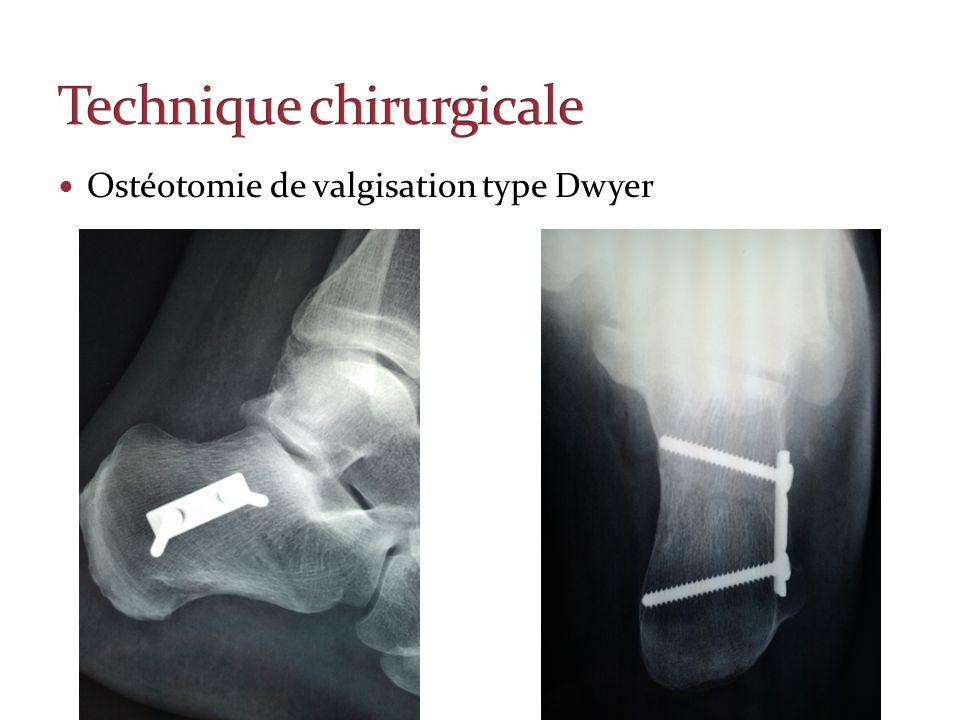 Technique chirurgicale