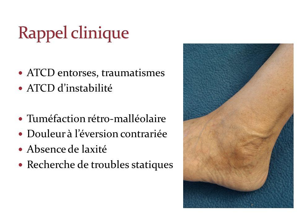 Rappel clinique ATCD entorses, traumatismes ATCD d'instabilité