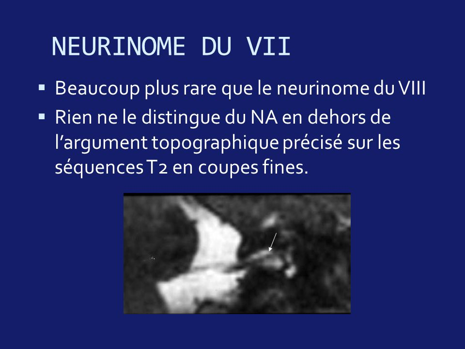 NEURINOME DU VII Beaucoup plus rare que le neurinome du VIII