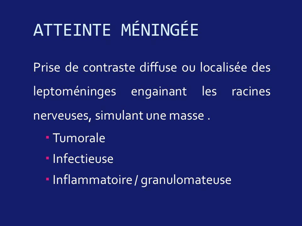 ATTEINTE MÉNINGÉE Prise de contraste diffuse ou localisée des leptoméninges engainant les racines nerveuses, simulant une masse .