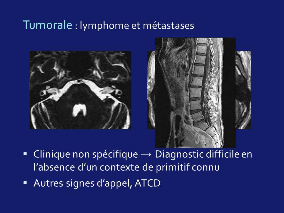 Tumorale : lymphome et métastases