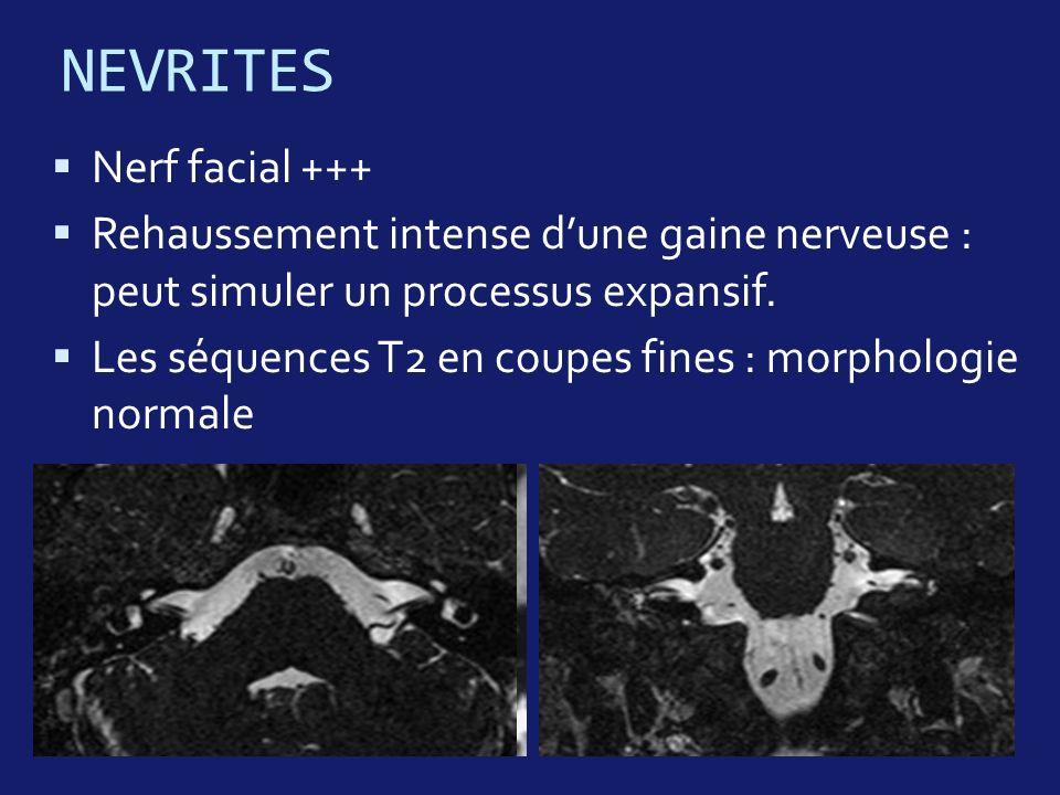 NEVRITES Nerf facial +++