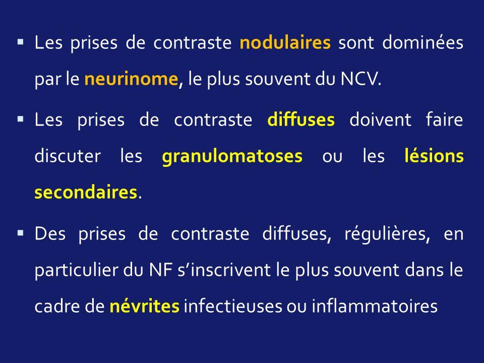 Les prises de contraste nodulaires sont dominées par le neurinome, le plus souvent du NCV.