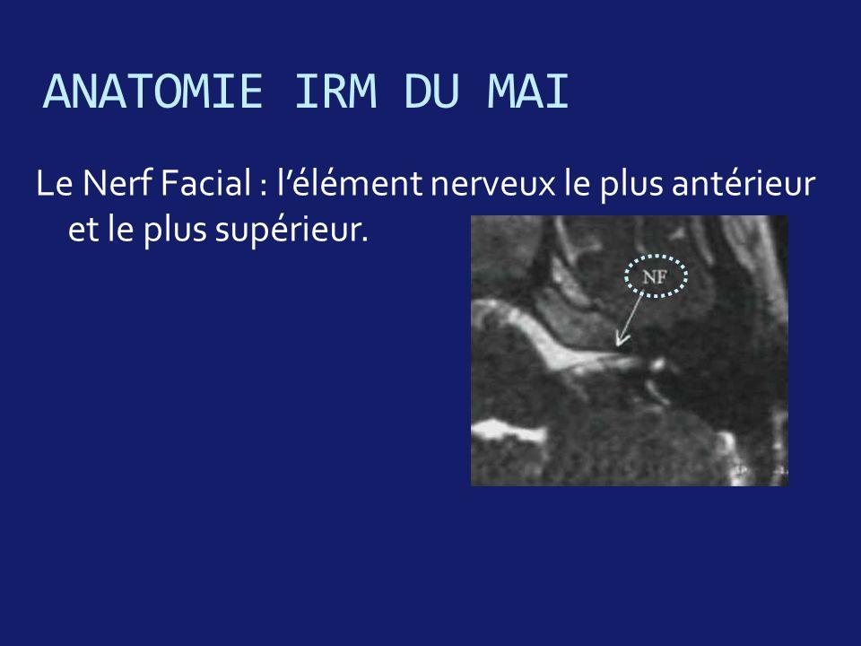 ANATOMIE IRM DU MAI Le Nerf Facial : l'élément nerveux le plus antérieur et le plus supérieur.