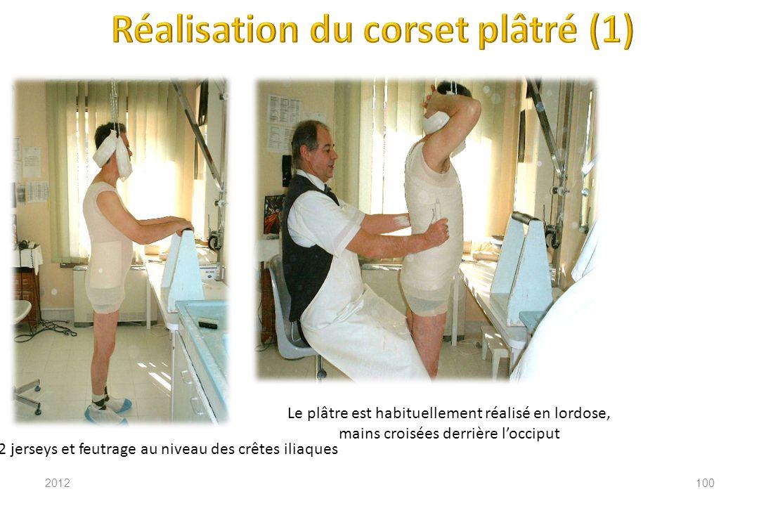 Réalisation du corset plâtré (1)