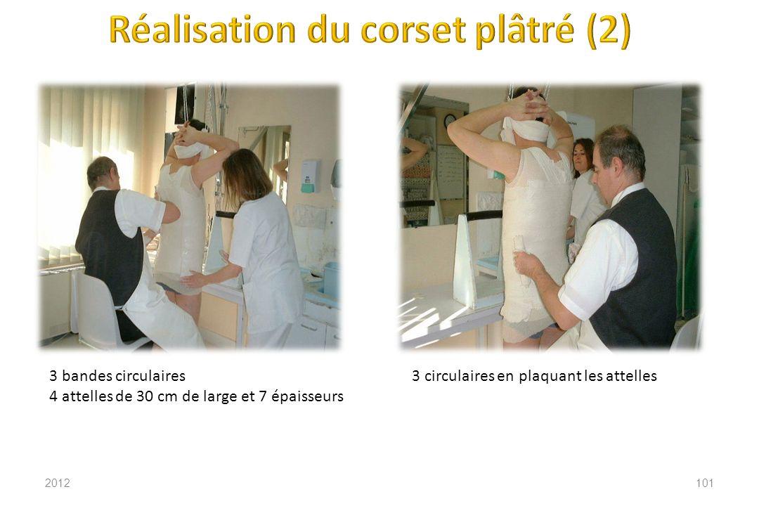 Réalisation du corset plâtré (2)