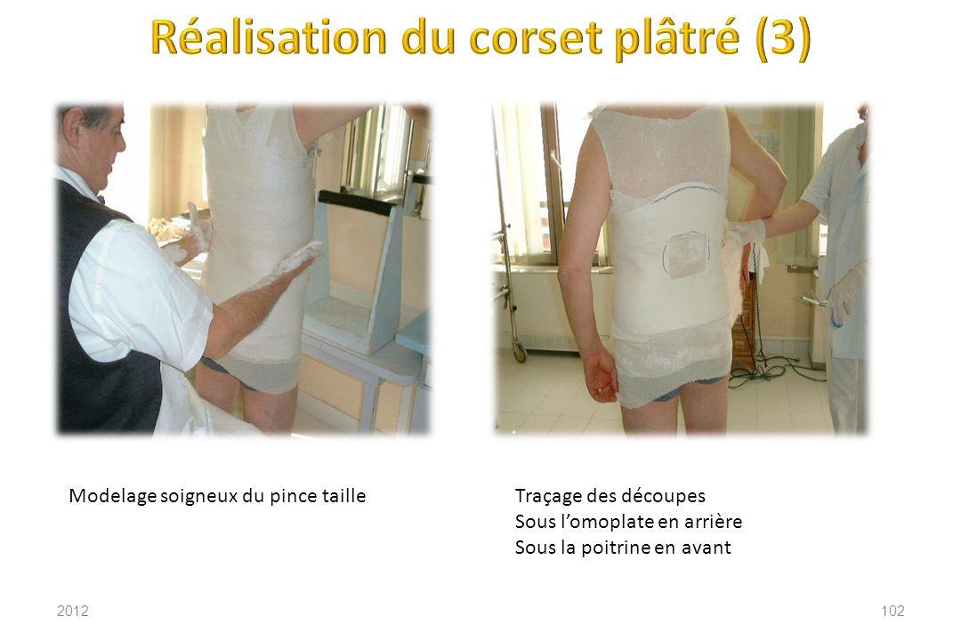 Réalisation du corset plâtré (3)