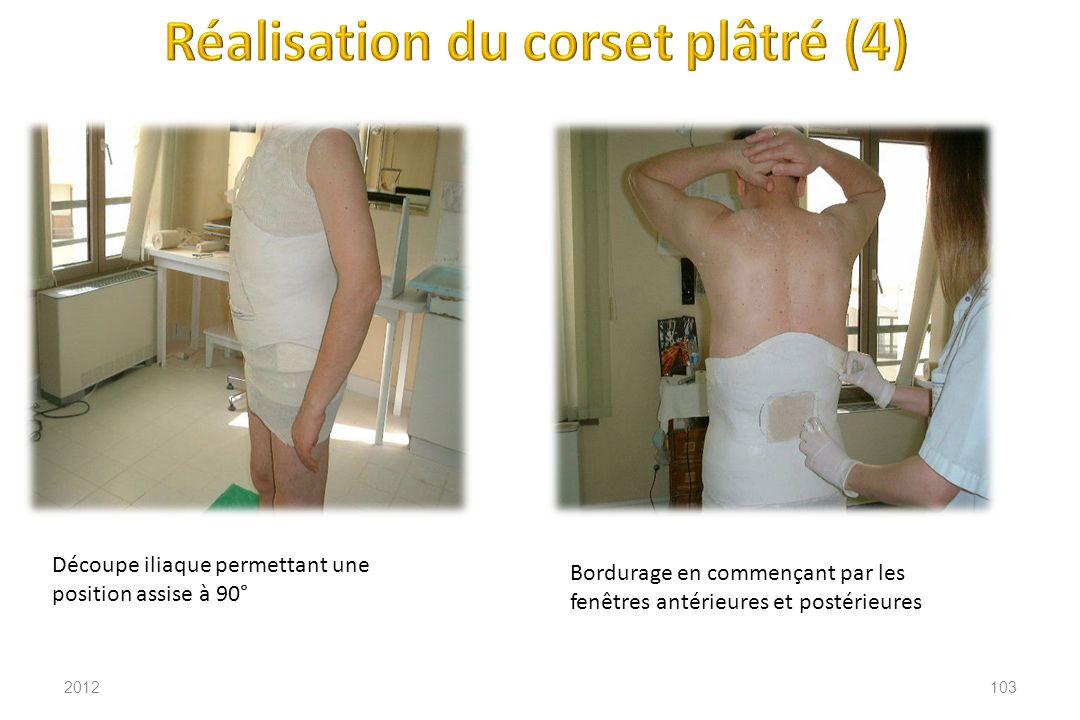 Réalisation du corset plâtré (4)