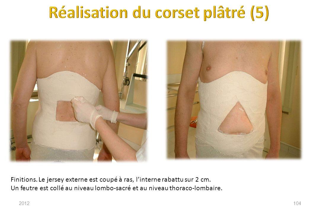 Réalisation du corset plâtré (5)
