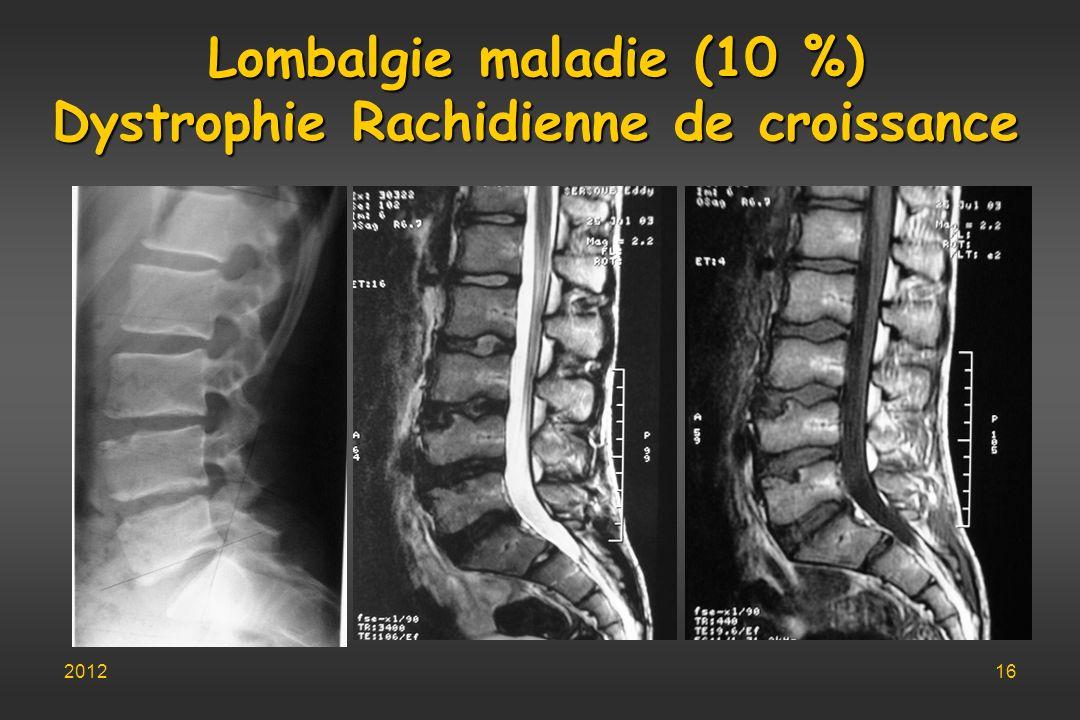 Lombalgie maladie (10 %) Dystrophie Rachidienne de croissance