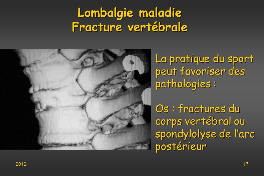 Lombalgie maladie Fracture vertébrale