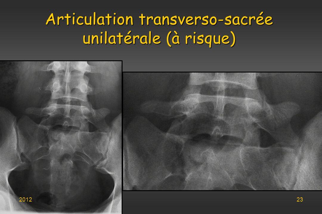 Articulation transverso-sacrée unilatérale (à risque)