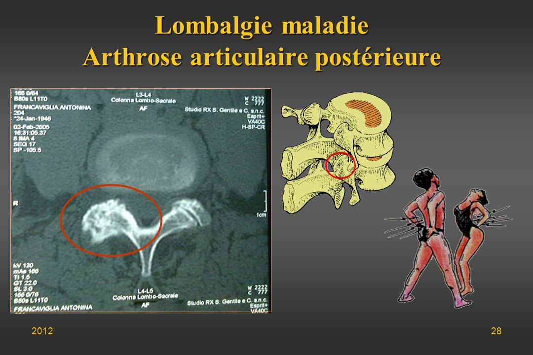Lombalgie maladie Arthrose articulaire postérieure