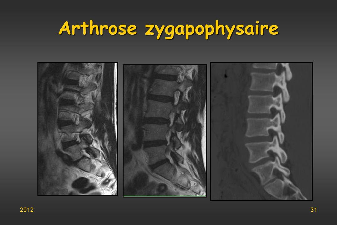 Arthrose zygapophysaire