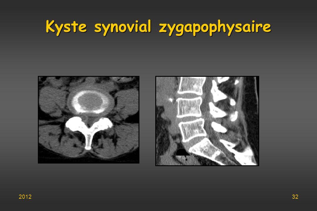 Kyste synovial zygapophysaire