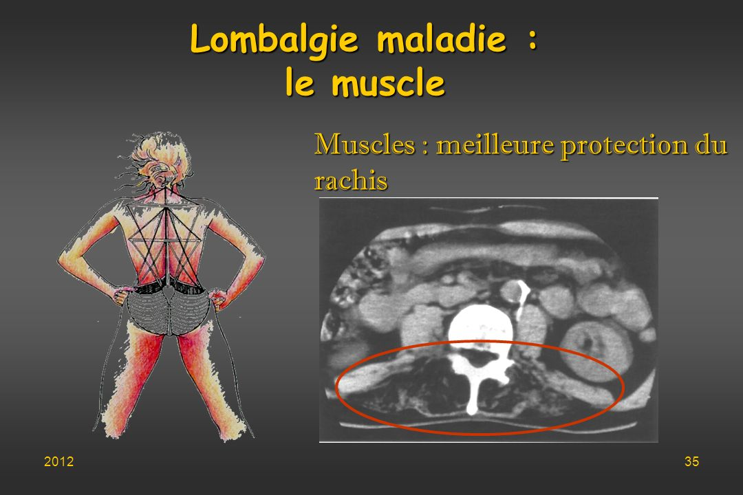 Lombalgie maladie : le muscle