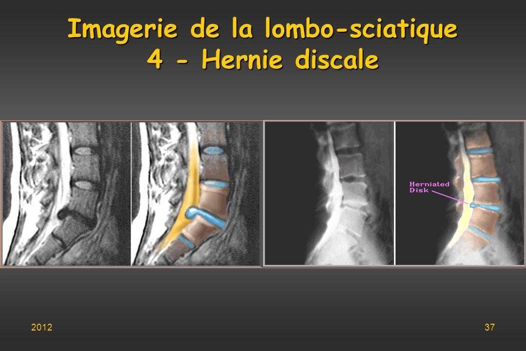 Imagerie de la lombo-sciatique 4 - Hernie discale