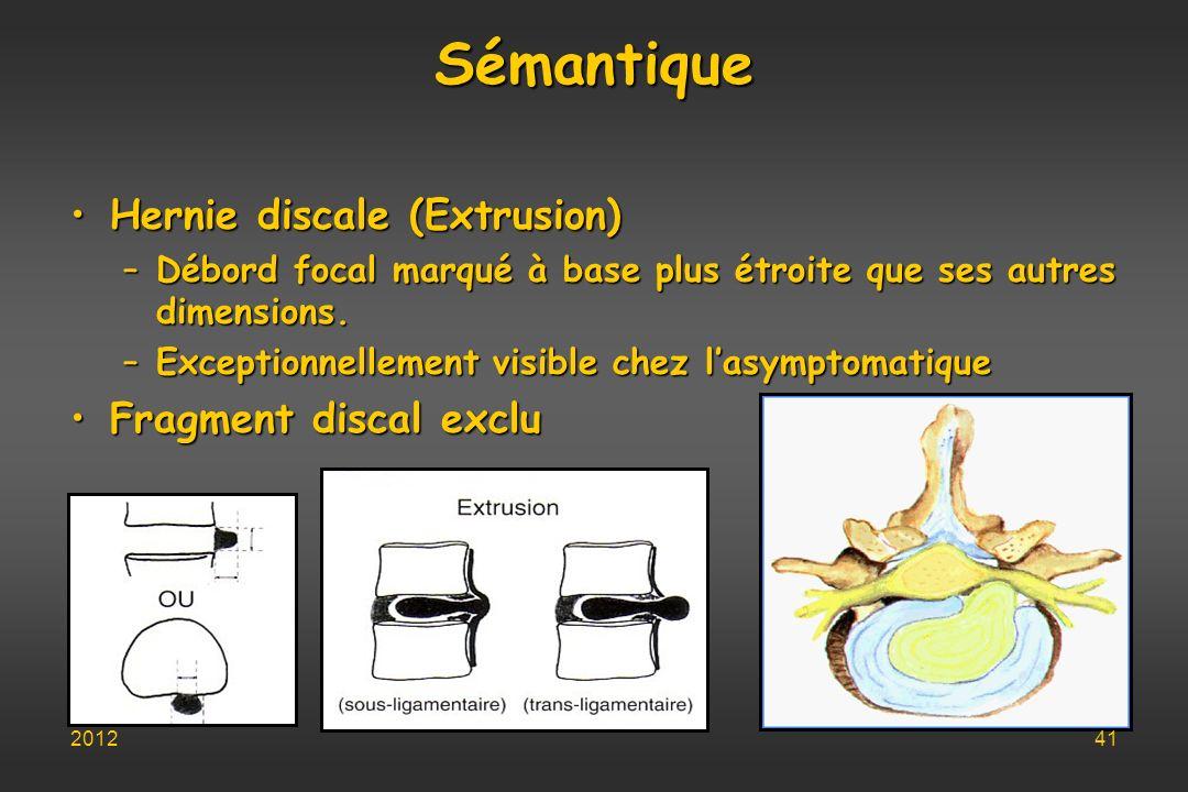 Sémantique Hernie discale (Extrusion) Fragment discal exclu