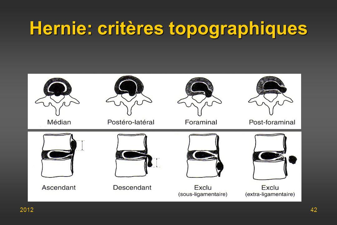 Hernie: critères topographiques