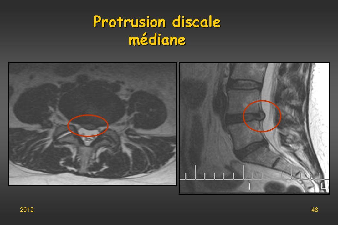 Protrusion discale médiane