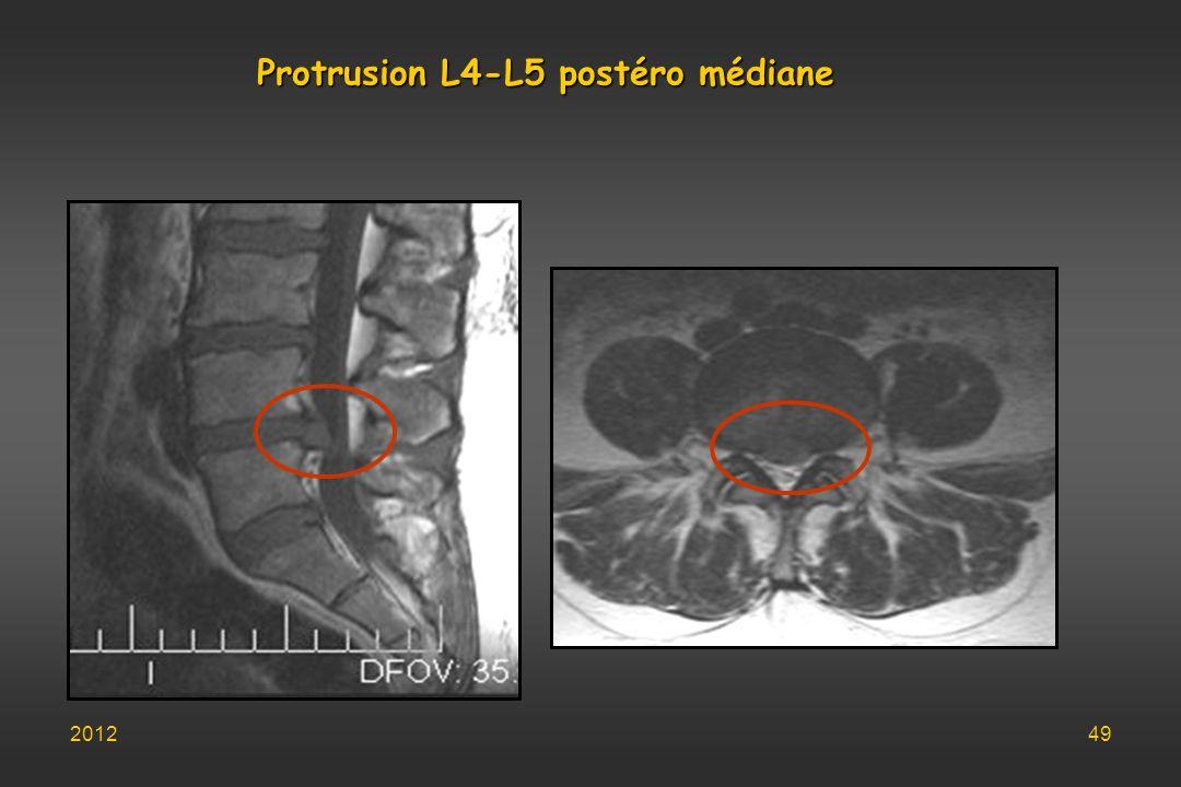 Protrusion L4-L5 postéro médiane