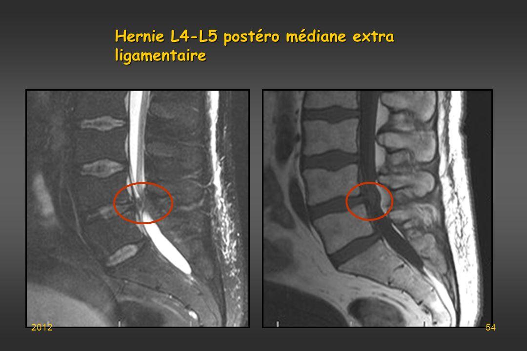 Hernie L4-L5 postéro médiane extra ligamentaire